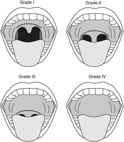 Mallampati classification (Image: ResearchGate)