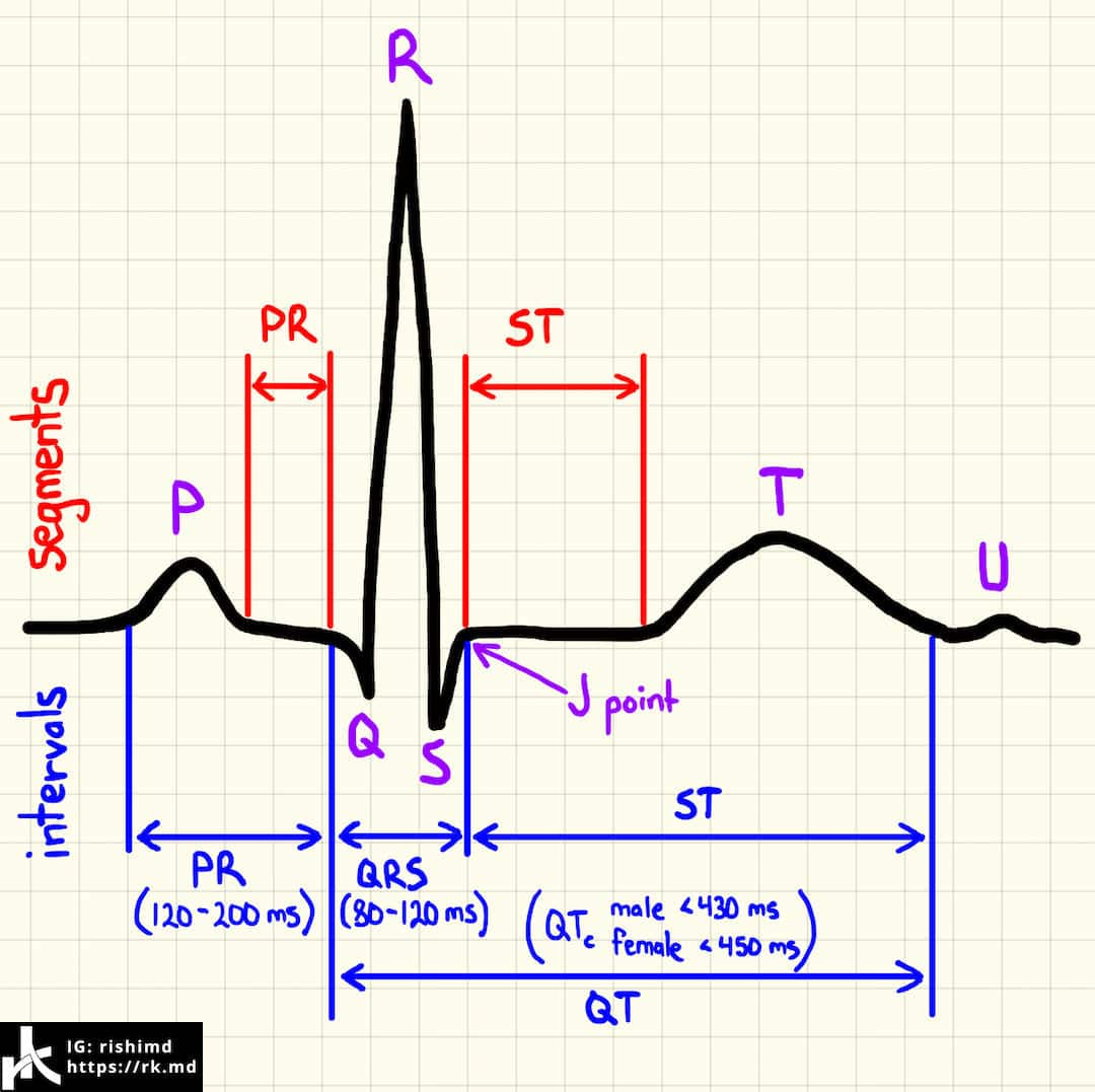 Instagram live normal ekg waves intervals and segments rk normal ekg morphology segments and intervals pooptronica Images